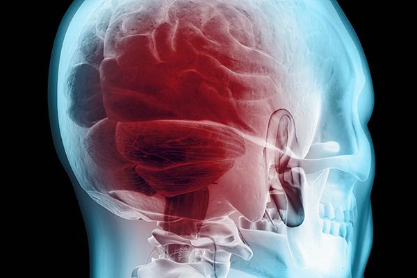 Neurozorg – Algemene kennis