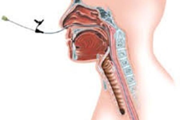 Neusmaagsonde – Anatomie en fysiologie