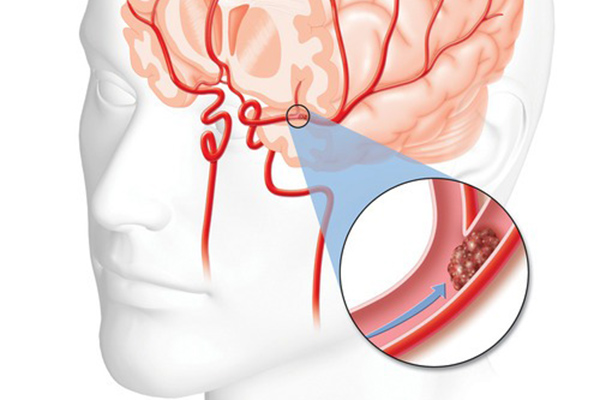 Neurozorg CVA